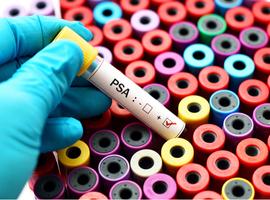 Wat is het nut van de PSA-dichtheid bij actieve surveillance van prostaatkanker?