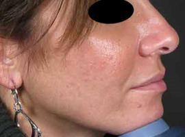 Le PRP en dermatologie esthétique