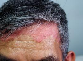PHARMA INFO: approbation par la Commission européenne de BIMZELX® (bimekizumab) pour le traitement des adultes atteints de psoriasis en plaques modéré à sév