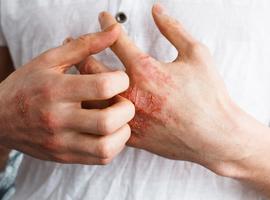 Atopische dermatitis en levenskwaliteit