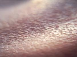 EADV: le meilleur de la dermatologie  en 2020