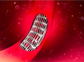 Are all drug-eluting stents equivalent in diabetic patients?
