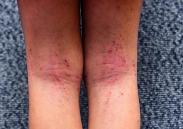Atopische dermatitis: steeds meer doelwitten