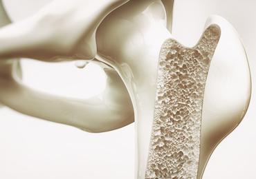 Les populations à faibles revenus seraient plus sujettes à l'ostéoporose