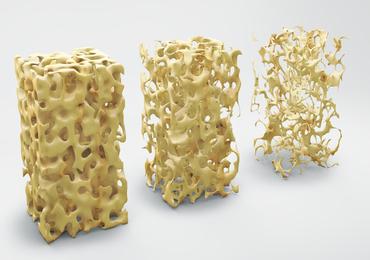 Prévention et traitement de l'ostéoporose induite par les glucocorticoïdes chez l'adulte (2e partie)