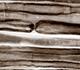 La N-acétylglucosamine, un espoir de traitement pour la sclérose en plaques?